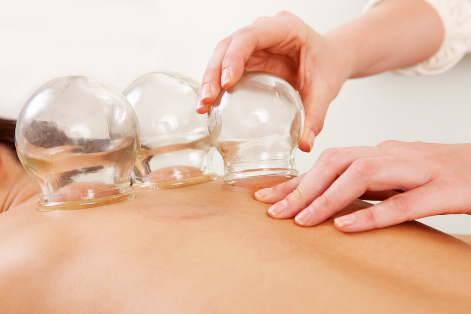 Cupping Pukekohe Osteopath
